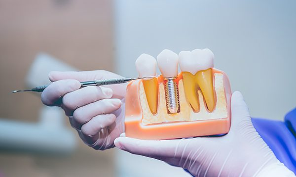 Dental Implants Let You Smile With Confidence